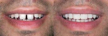 Smile Gallery - Hanover Dental, Hanover Park Dentist