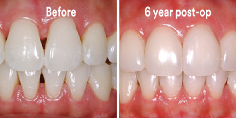 BioClear Diastema Closure and Black Triangle Closure  - Hanover Dental, Hanover Park Dentist