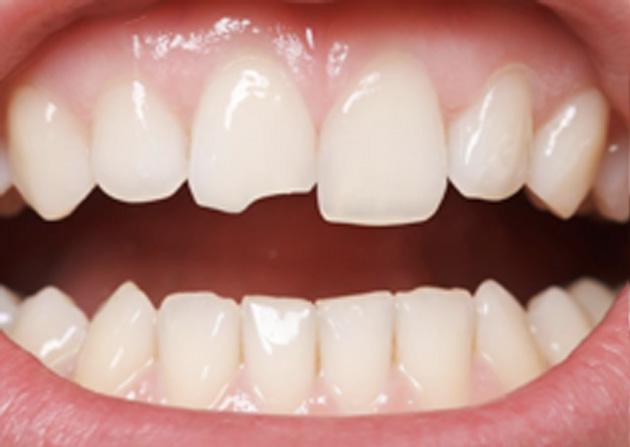 Cosmetic Bonding  - Hanover Dental, Hanover Park Dentist