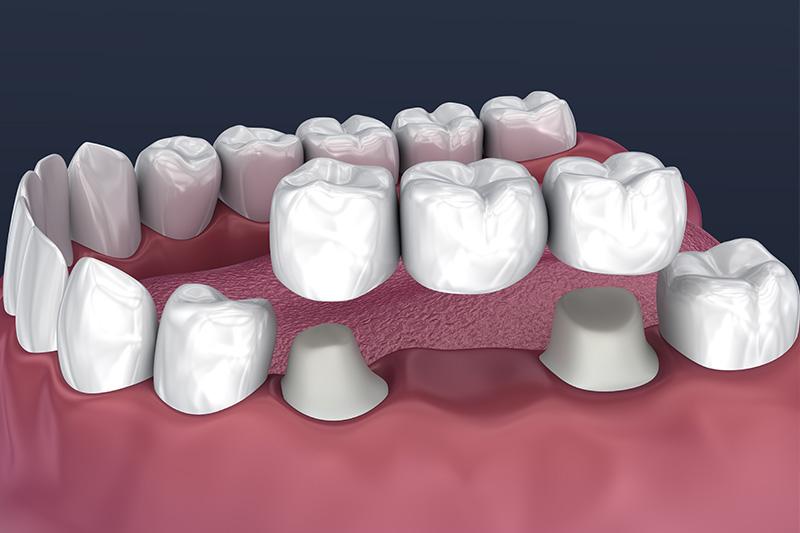 Crowns and Bridges, Inlays and Onlays  - Hanover Dental, Hanover Park Dentist