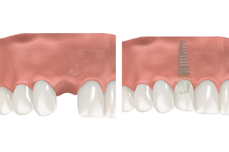 Dental Implants - Hanover Dental, Hanover Park Dentist