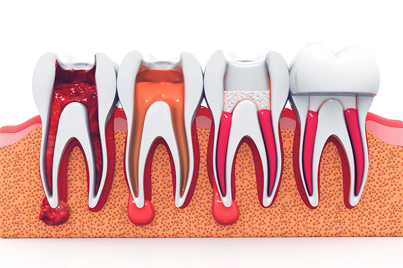 Root Canal Therapy  - Hanover Dental, Hanover Park Dentist