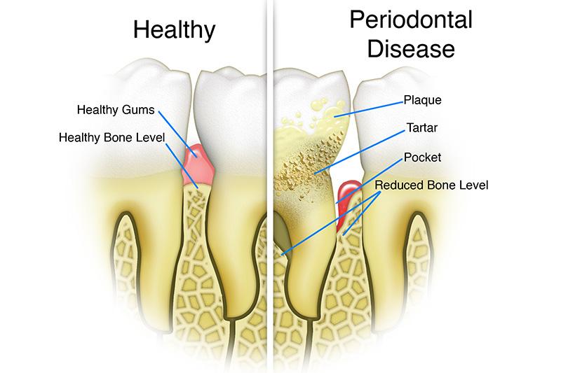 Scaling & Root Planings (Deep Cleanings)  - Hanover Dental, Hanover Park Dentist