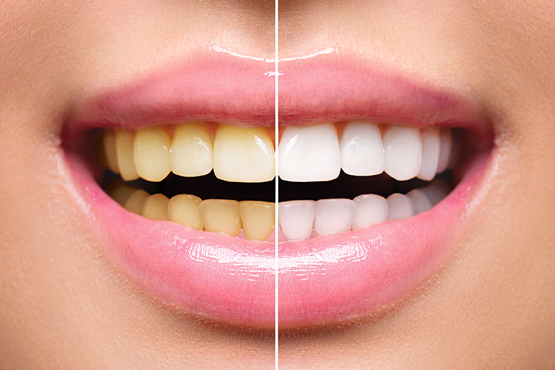 Teeth Whitening - Hanover Dental, Hanover Park Dentist
