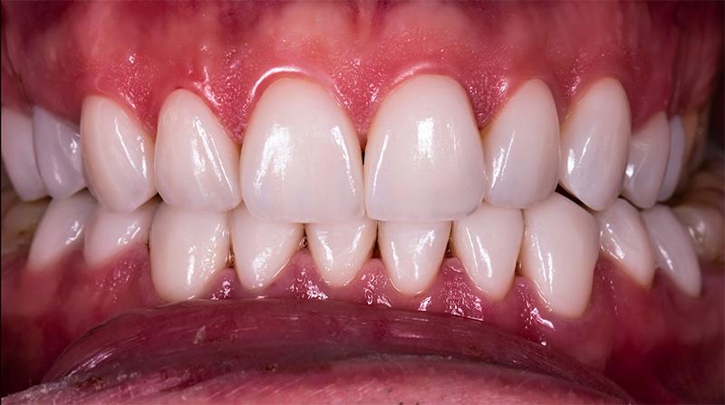 Veneers  - Hanover Dental, Hanover Park Dentist