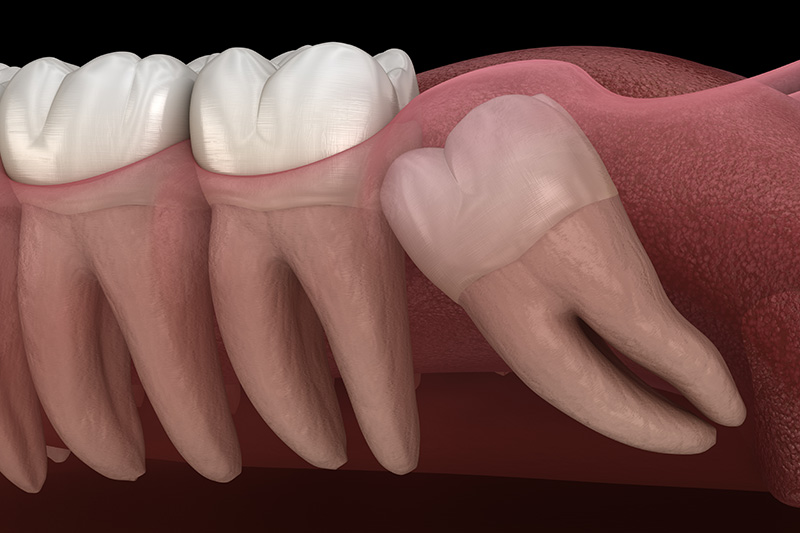 Wisdom Teeth Extractions (with Sedation)  - Hanover Dental, Hanover Park Dentist